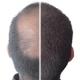 Kmax Zagęszczanie Włosów 3,5g (mikrowłókna)